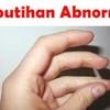 Obat Infeksi Saluran Kencing Nanah