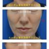 頬の下のコケをヒアルロン酸注入で。2回に分けて治療したリピーター様です。