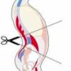 胸椎伸展パターンの方の改善方法を書いてミタ