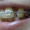歯列矯正37日目・調整3回目