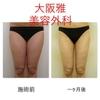 大腿、臀部の症例写真👣