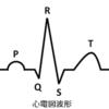 心電図T波増高の定義と原因