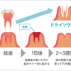 歯が痛いのでブログ書きます。