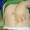 高熱の原因は、突発性発疹でした!【2歳9ヶ月】