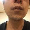 ヒゲ脱毛 RINX 経過報告