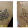 1回の治療でもタトゥーが薄くなりました