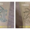 腕のタトゥー1回治療後です。