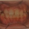 矯正治療後の失敗!前歯の隙間が広がる