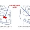high flow(ハイフロー、高肺血流)について。VSDやASDで更に考える 基本3