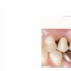 113回歯科医師国家試験を振り返る企画③