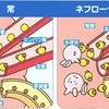 4-1.【ネフローゼ症候群】ネフローゼ症候群の病態生理