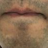 【毛22】髭永久脱毛7回目施術と術後経過観察@ゴリラクリニック