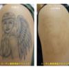 ピコレーザー(エンライトンⅢ)で肩~腕のタトゥーをとります
