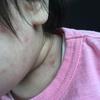 娘が水疱瘡(みずぼうそう)に感染し、プチパニックッ!