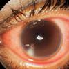 症例41:左眼球を蜂に刺された22歳男性 (N Engl J Med. 2020 Dec 3;383(23):2274.)
