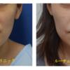 くま・たるみの腫れない治療の長期経過。治療後1年です