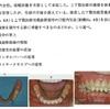 114回 義歯振り返り 新義歯製作編
