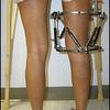 Heel Lifts For Leg Length Discrepancy