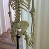 骨の歪みは生活習慣で変わります。