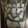 尺骨遠位端単独骨折は手術か保存治療が可能か