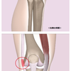 テーピングと筋膜リリースでランナー膝(ランナーズニー)を予防する!