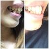 歯並び比較、抜歯跡2