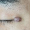 目の近くの大きなできものの治療例