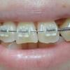 歯列矯正から83日目・6回目の調整