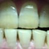 歯が白くなる歯磨きを使ってみる アパガード プレミオ プレミアムタイプ  8日目