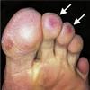 症例16:両側つま先の痛みを訴える40歳男性(Ann Emerg Med. 2020 Nov;76(5):594-624.)