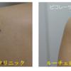 背中の水色のタトゥーにピコレーザー治療を10回行いました。