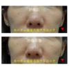頬の下のコケをヒアルロン酸注入で治療しました。