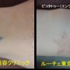 手首タトゥーの☆の形
