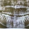 歯の定期クリーニングのススメ