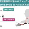 セラピストは必読!経頭蓋磁気刺激の知識:短潜時皮質内抑制(SICI)