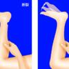 アキレス腱断裂の診察:トンプソン法とは