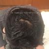 荒野な頭皮もフサフサに!【4か月目】頭の生え際が濃くなってる。ミノキシジルとプロペシア薬の経過 AGAハゲ・頭皮画像