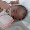 在胎週数28週未満でほぼ100%と言われる未熟児網膜症について