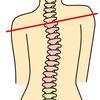 【身体の不調は背骨の歪みから】背骨の歪みが原因となる症状とセルフケアについて