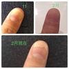 完治も間近!爪甲剥離症の劇的改善