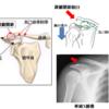 肩・上腕の外傷へのアプローチ(編集中)