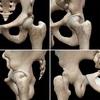 大腿骨頭が股関節にしっかりはまっていること