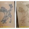 新着ピコレーザービフォーアフター!腕のタトゥーはこう消えていく!カラータトゥー3色(黒・ピンク・紫)の経過