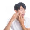 男ニキビの治し方!即効性と持続性を求めるならゴリラ洗顔