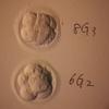 第二子妊活 移植周期#4 D17 〜最後の移植が無事に終わりました!〜
