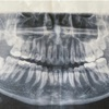 親知らず4本抜歯(手術中の流れ)