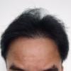 DHI式自毛植毛343日目49週目