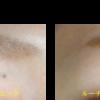 瞼のあおスジの治療をしました。 浮き出た血管を消します。エクセルVレーザー