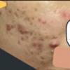 皮膚の経過観察