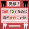 【実録】虫歯0なのに歯が変色した話。歯磨きには限界があるぞ。